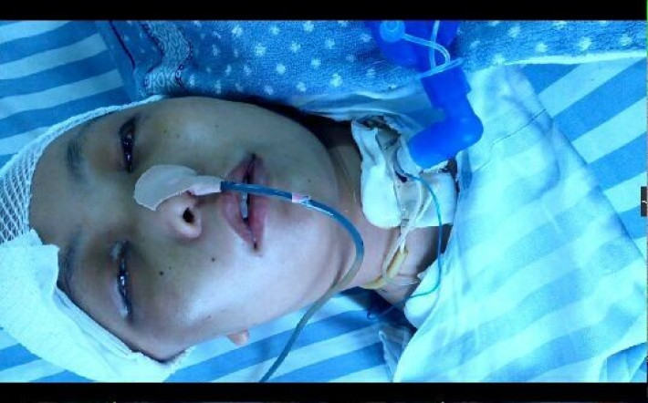 女子车祸昏一岁宝宝整天要妈妈